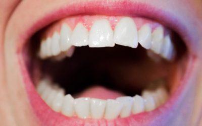 What  is Oral Cancer?