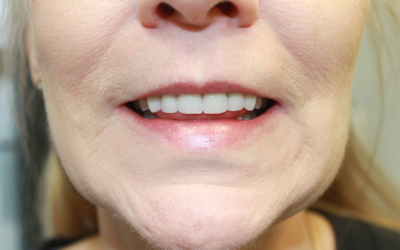5 Reasons For Cleaning Dentures