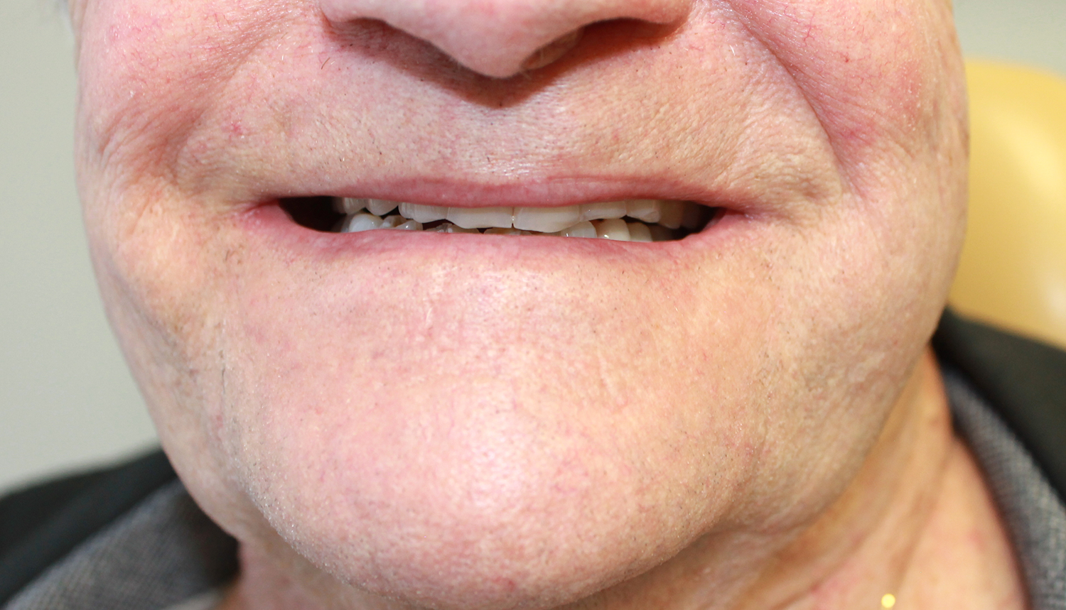 Denture Implant Airdrie