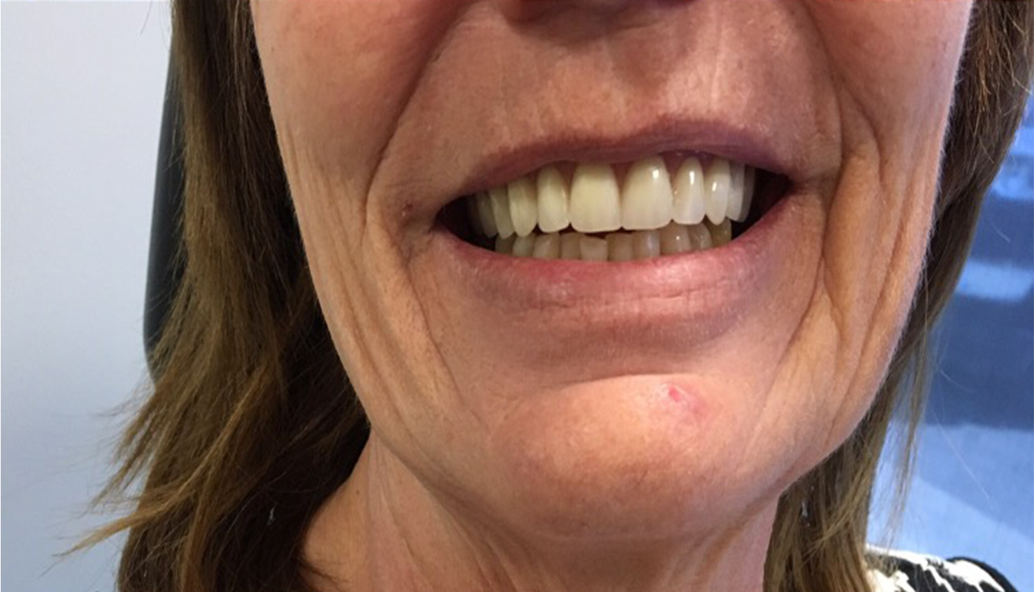 Denture Adjustments Alberta