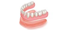 Standard Dentures Alberta