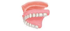 Immediate Dentures Alberta