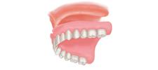 Immediate Dentures Alberta
