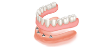 Implant-Retained Dentures Alberta