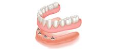 Implant-Retained Dentures Alberta