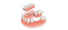 Removable Partial Dentures Alberta