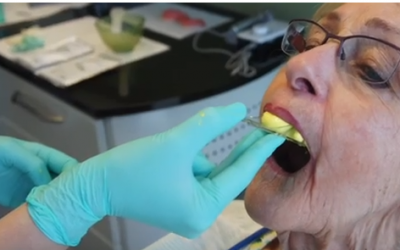 New to Dentures – Short Overview of your Options