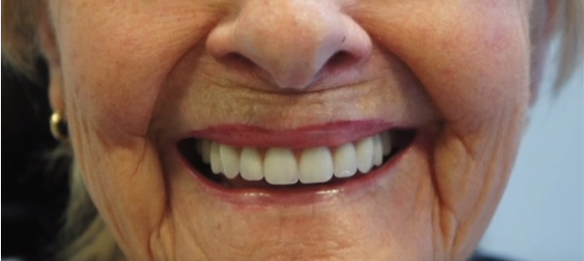 Denture Cleaning Airdrie