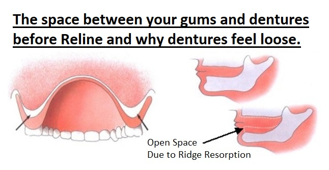 reline - resorption