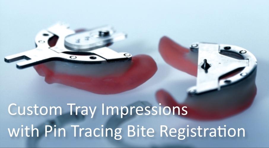 Custom impressions
