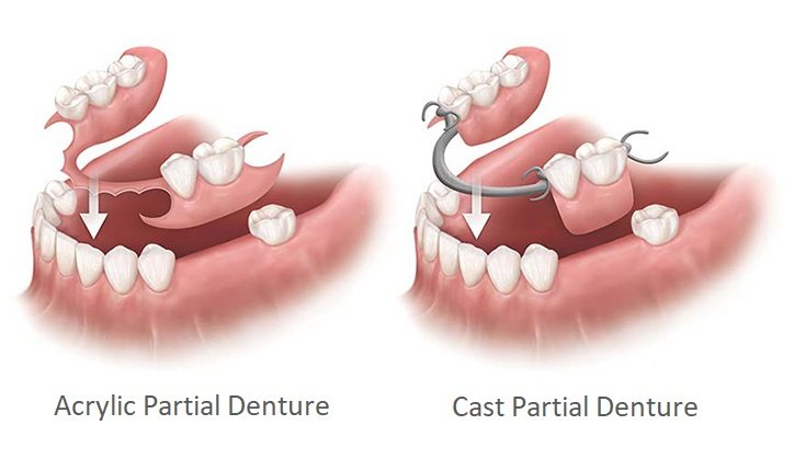 Types of partial-dentures